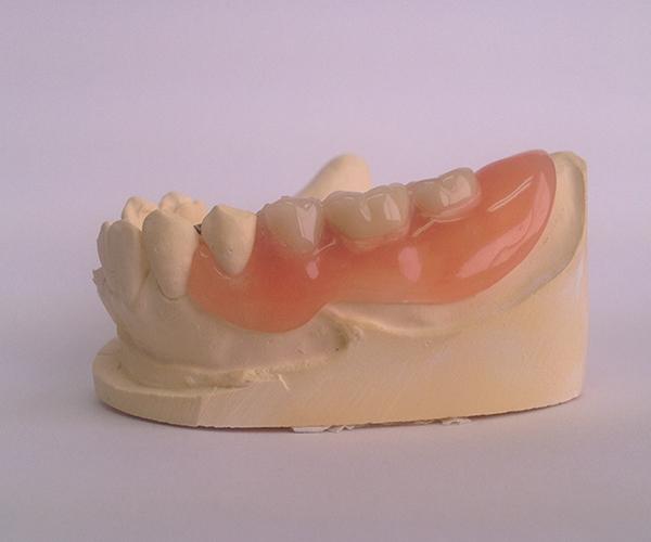 フレキサイト素材を用いて作製したオーダーメイドの部分入れ歯。