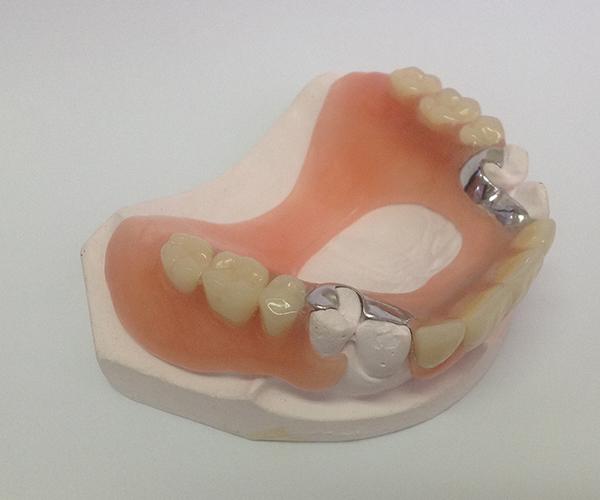 フレキサイト素材を用いて作製した下顎全体のオーダーメイド入れ歯。