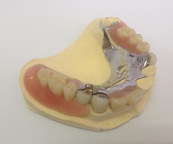 金属とフレキサイト素材を掛けあわせたオーダーメイドの入れ歯